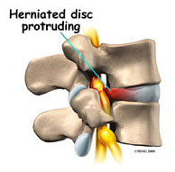 Herniated disc protruding